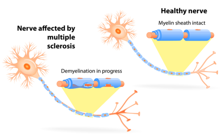 myelin sheath diagram