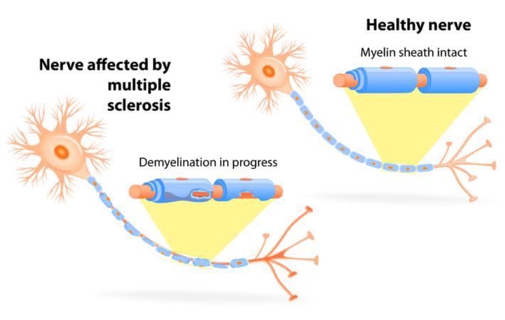 myelin sheath diagram